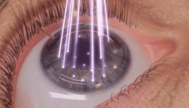Cirugía láser: Guía rápida